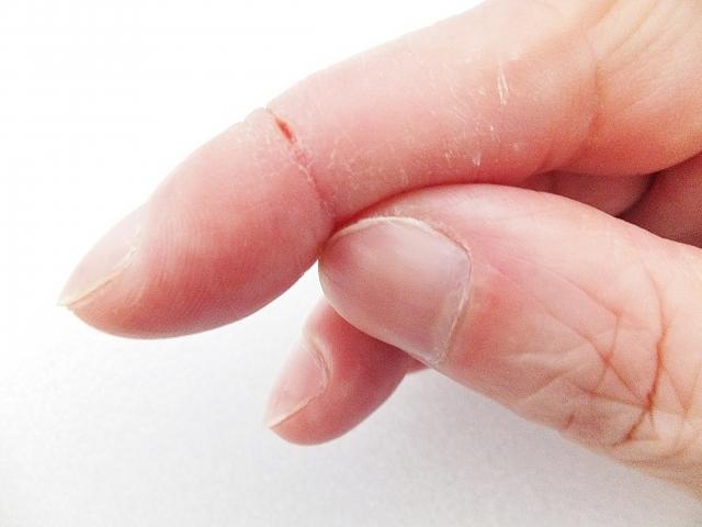 皮膚の鍼灸